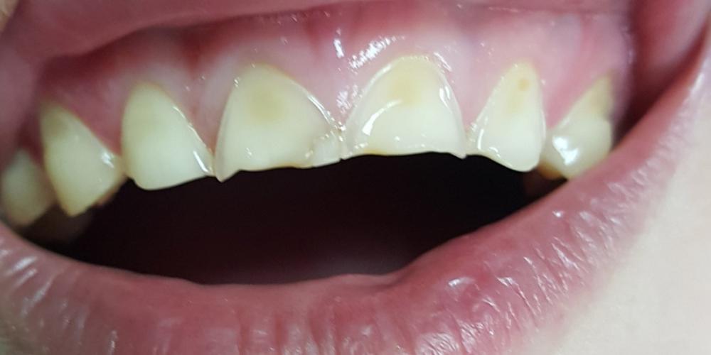 Эстетическая реставрация 10 передних зубов в цвет