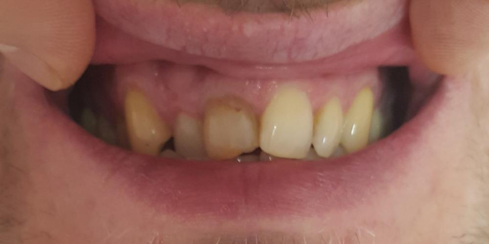 Эстетическая реставрация передних зубов