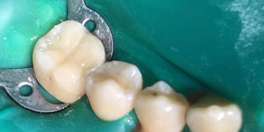 Реставрация 46 зуба по силиконовому ключу