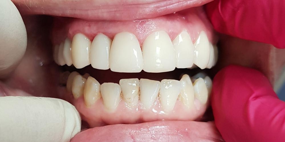 Эстетическая реставрация переднего зуба