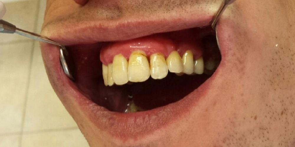 Фотография после лечения Исправление зубного ряда, санация полости рта