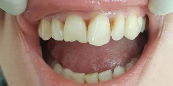 Эстетическая реставрация передних зубов, устранение сколов фото до лечения