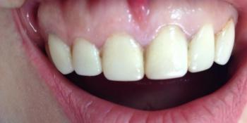 Реставрация верхних передних зубов фото до лечения