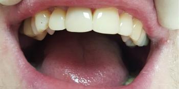 Эстетическая реставрация передних зубов фото после лечения