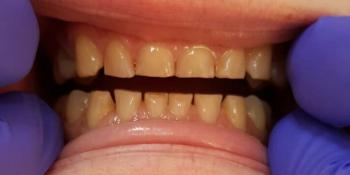 Эстетическая реставрация зубов за 2 приема фото до лечения