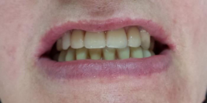 Полное восстановление отсутствия зубов нижней и верхней челюсти фото после лечения
