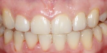 Результат профессионального отбеливания зубов Zoom 4 фото до лечения