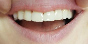 Воссоздание здоровой и красивой улыбки фото после лечения