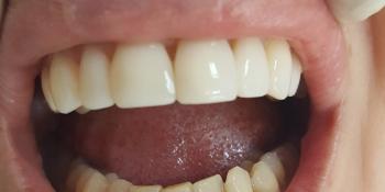 Эстетическая реставрация передних зубов, устранение сколов фото после лечения