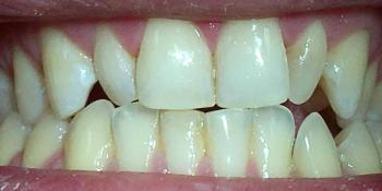 Устранение сколов режущего края центральных верхних резцов фото после лечения