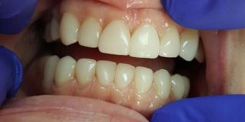 Эстетическая реставрация зубов за 2 приема фото после лечения