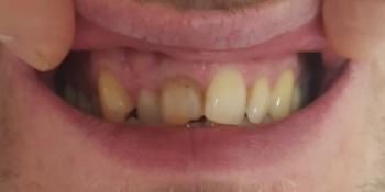 Эстетическая реставрация передних зубов фото до лечения