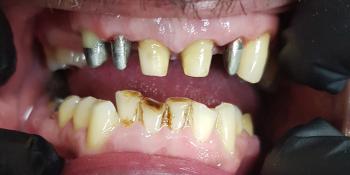 Повторное протезирование металлокерамикой и эстетическая реставрация фото до лечения
