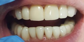 Эстетическая реставрация передних зубов верхней и нижней челюсти с изменением цвета на более светлый фото после лечения