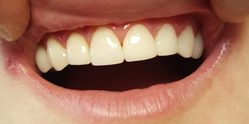 Эстетическая реставрация 10 передних зубов в цвет фото после лечения
