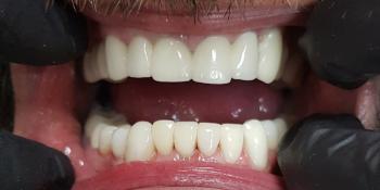 Повторное протезирование металлокерамикой и эстетическая реставрация фото после лечения