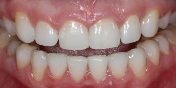 Результат профессионального отбеливания зубов Zoom 4 фото после лечения