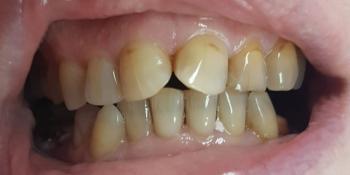Эстетическая реставрация передних зубов верхней и нижней челюсти с изменением цвета на более светлый фото до лечения