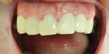 Протезирование верхней челюсти при парадонте фото до лечения