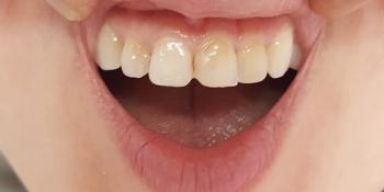 Воссоздание здоровой и красивой улыбки фото до лечения