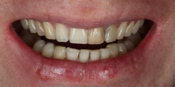 Неудовлетворительный эсететический вид центральных зубов фото до лечения