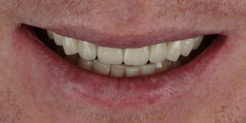 Неудовлетворительный эсететический вид центральных зубов фото после лечения