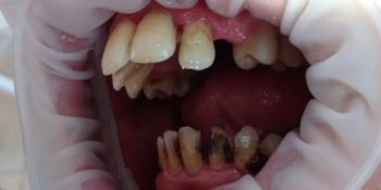 Исправление зубного ряда, санация полости рта фото до лечения