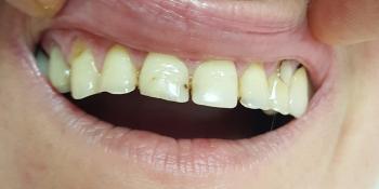Закрытие тремы между передними зубами фото до лечения